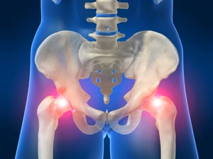 Hip Pain Common Causes