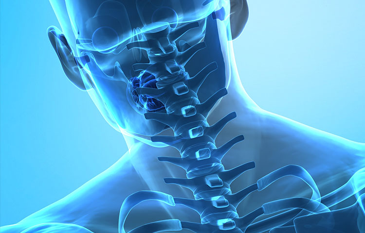 Cervical Spine Injury After Side Impact Collisions