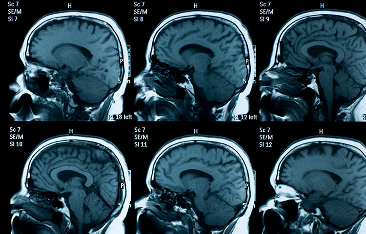 Brain Injuries Cause Lasting Sexual Dysfunction