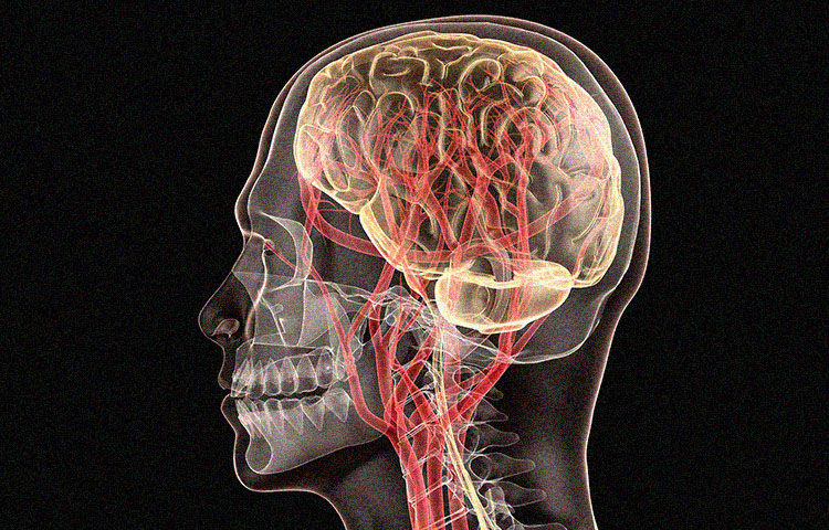 No One-Size-Fits-All Treatment for Sports Concussions, New ...